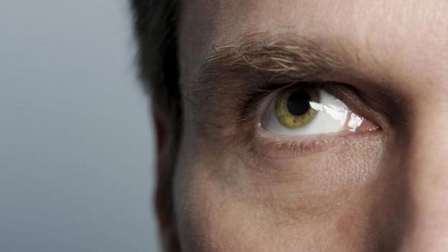 الأعين